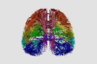 ¿Cuáles son los 6 descubrimientos sobre el funcionamiento del cerebro que cambio el foco del coaching?